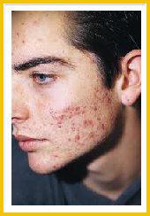 Sobre la persona había unos granos después del afeitado